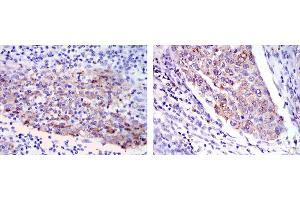 Image no. 5 for anti-Matrix Metallopeptidase 1 (Interstitial Collagenase) (MMP1) antibody (ABIN1108257)