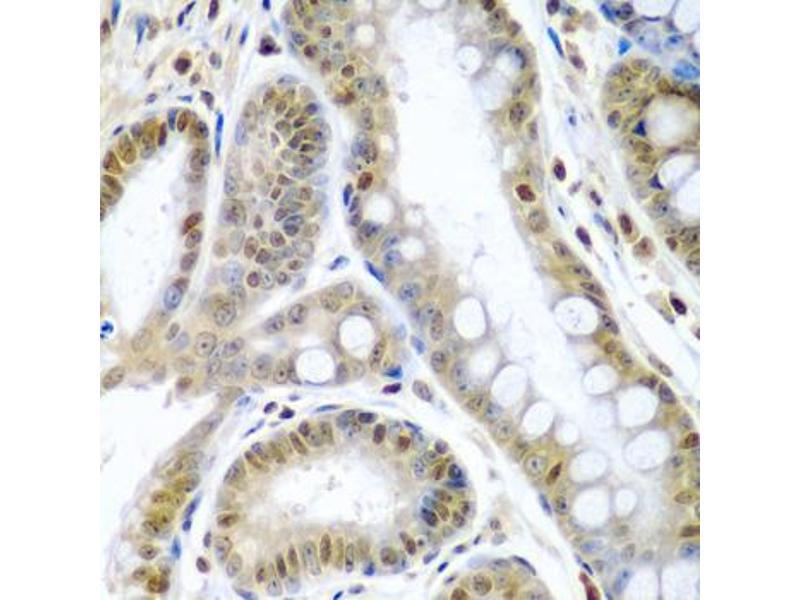 Image no. 3 for anti-Tumor Necrosis Factor (Ligand) Superfamily, Member 10 (TNFSF10) antibody (ABIN6569130)