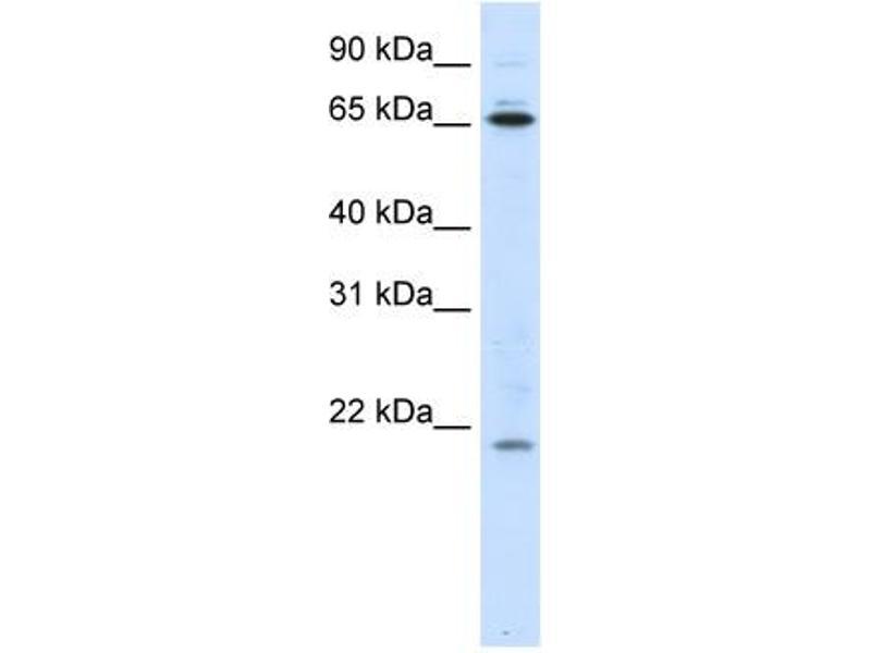 Western Blotting (WB) image for anti-Nuclear Import 7 Homolog (S. Cerevisiae) (NIP7) (Middle Region) antibody (ABIN184037)