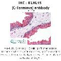 anti-KLHL15 抗体 (Kelch-Like 15 (Drosophila)) (C-Term)