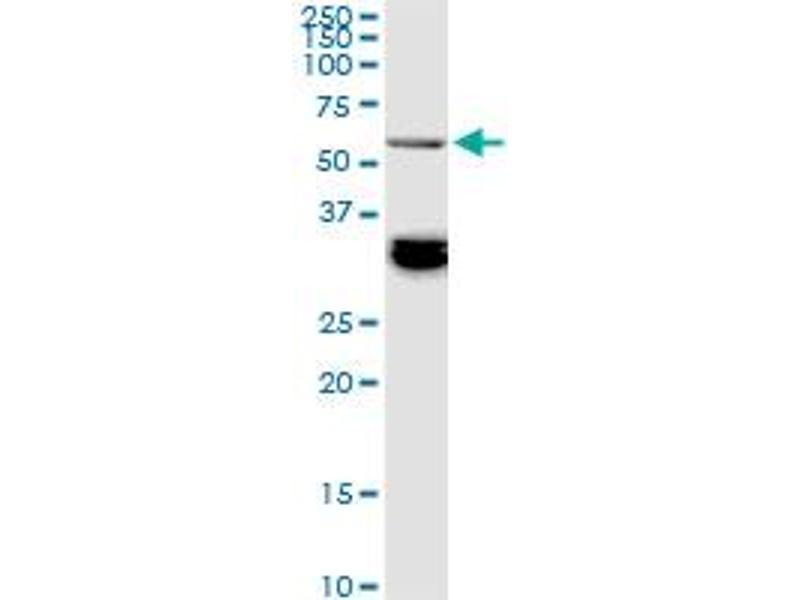 Western Blotting (WB) image for anti-BAI1-Associated Protein 2-Like-1 (BAIAP2L1) (AA 398-511), (partial) antibody (ABIN565967)