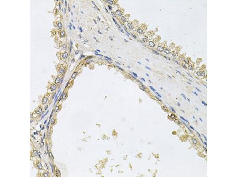 Image no. 2 for anti-Protein O-Linked Mannose Beta1,2-N-Acetylglucosaminyltransferase (POMGNT1) antibody (ABIN6572060)