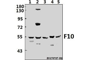 Image no. 1 for anti-Coagulation Factor X (F10) (AA 1-50) antibody (ABIN6711306)