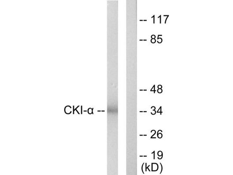 Western Blotting (WB) image for anti-Casein Kinase 1, alpha 1 (CSNK1A1) (Internal Region) antibody (ABIN1849386)