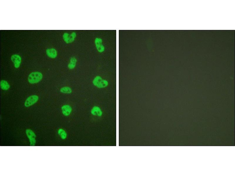 Image no. 3 for anti-DNA-PK antibody (ABIN1576098)
