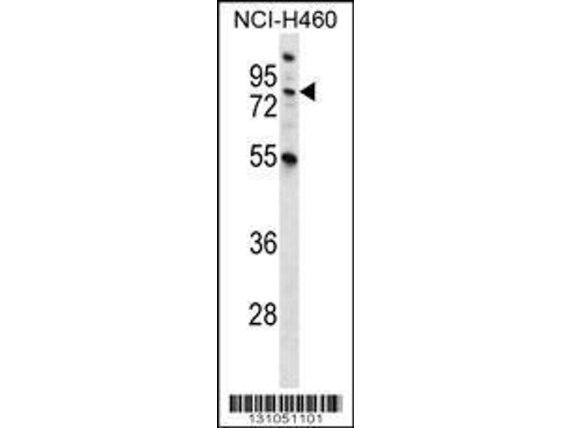 Western Blotting (WB) image for anti-Macrophage Stimulating 1 (Hepatocyte Growth Factor-Like) (MST1) (AA 454-483), (C-Term) antibody (ABIN656286)