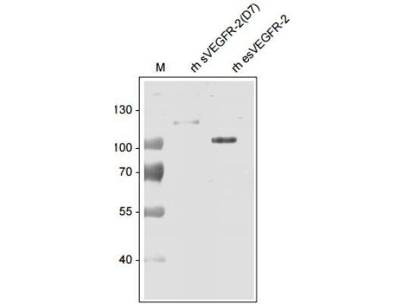 Western Blotting (WB) image for anti-Kinase insert Domain Receptor (A Type III Receptor tyrosine Kinase) (KDR) antibody (ABIN152343)