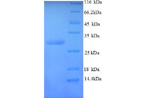 Image no. 1 for Calcitonin-Related Polypeptide alpha (CALCA) (AA 83-118) protein (GST tag) (ABIN5712970)