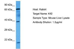 Image no. 1 for anti-Kruppel-Like Factor 2 (Lung) (KLF2) (N-Term) antibody (ABIN2779863)