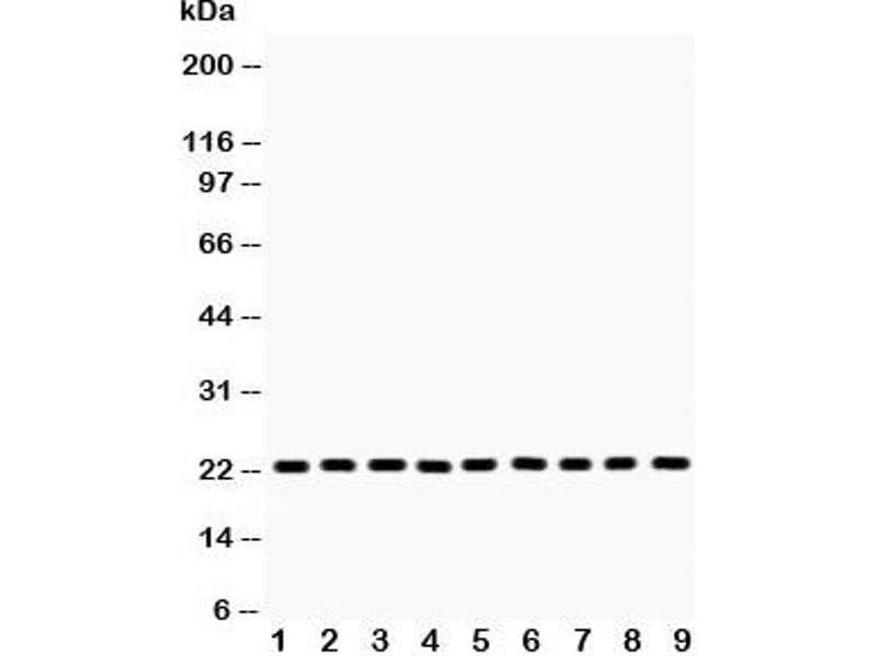 Western Blotting (WB) image for anti-Peroxiredoxin 1 (PRDX1) (Middle Region) antibody (ABIN3028921)