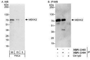 Western Blotting (WB) image for anti-MAP3K2 antibody (Mitogen-Activated Protein Kinase Kinase Kinase 2) (ABIN439364)