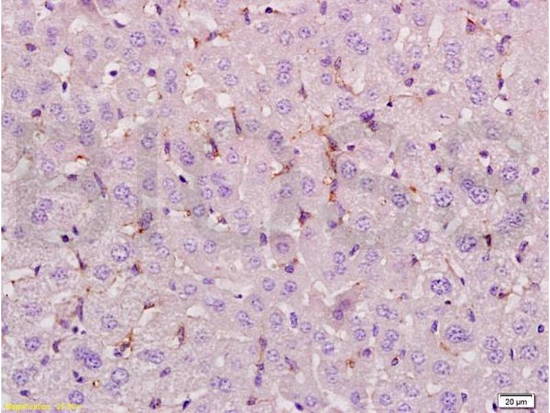 Immunohistochemistry (IHC) image for anti-Lymphoid Enhancer-Binding Factor 1 (LEF1) antibody (ABIN735248)