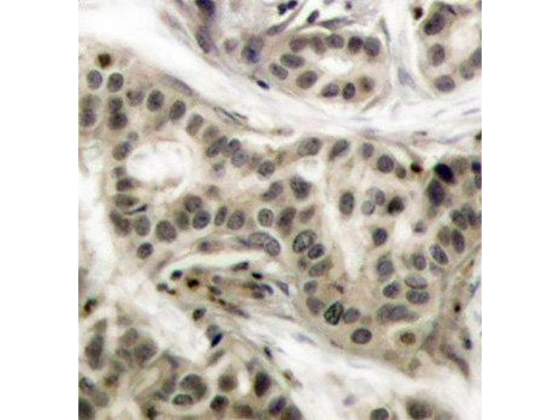 Immunohistochemistry (IHC) image for anti-NFKB1 antibody (Nuclear Factor of kappa Light Polypeptide Gene Enhancer in B-Cells 1) (pSer337) (ABIN1870464)