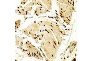 Image no. 4 for anti-Nuclear Factor of Activated T-Cells, Cytoplasmic, Calcineurin-Dependent 1 (NFATC1) antibody (ABIN3022101)