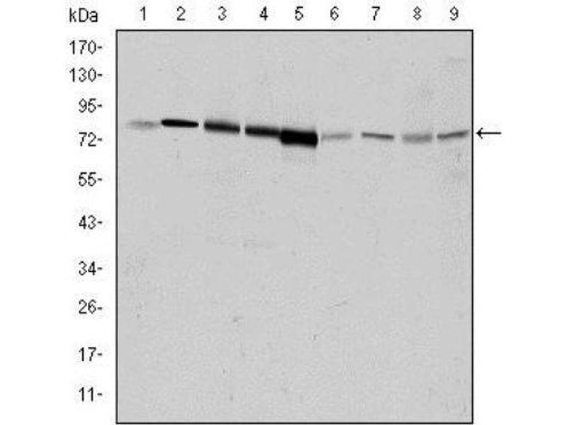 Western Blotting (WB) image for anti-Adrenergic, Beta, Receptor Kinase 1 (ADRB1) antibody (ABIN4316203)