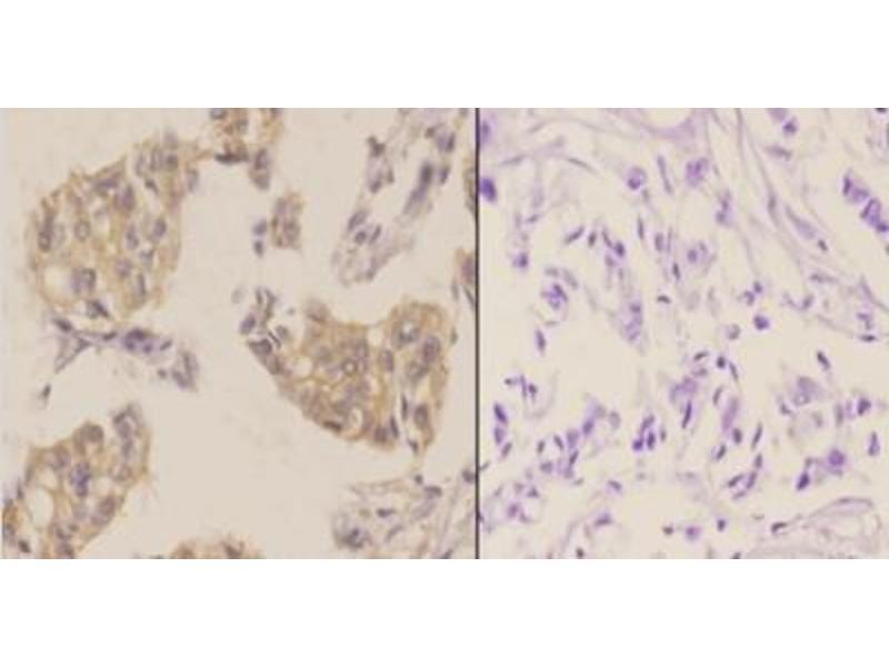 Immunohistochemistry (Paraffin-embedded Sections) (IHC (p)) image for anti-Mechanistic Target of Rapamycin (serine/threonine Kinase) (FRAP1) antibody (ABIN447030)
