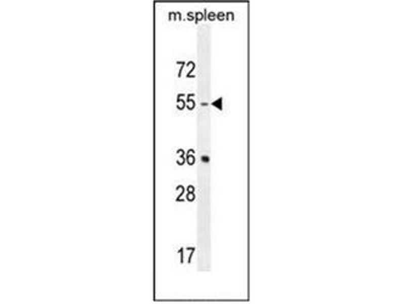 Western Blotting (WB) image for anti-Serotonin Receptor 2B antibody (HTR2B) (AA 415-442) (ABIN954734)