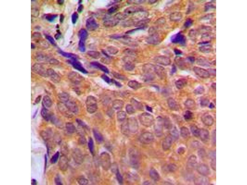 Immunohistochemistry (IHC) image for anti-CHEK1 antibody (Checkpoint Kinase 1) (Center) (ABIN2705867)