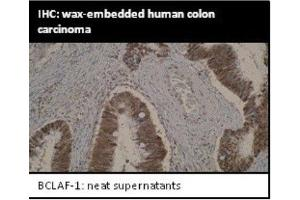 Immunohistochemistry (IHC) image for anti-BCL2-Associated Transcription Factor 1 (BCLAF1) antibody (ABIN4285516)