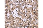 Immunohistochemistry (IHC) image for anti-Colony Stimulating Factor 2 Receptor, Beta, Low-Affinity (Granulocyte-Macrophage) (CSF2RB) antibody (ABIN2433095)