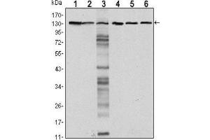 Western Blotting (WB) image for anti-Cadherin 1, Type 1, E-Cadherin (Epithelial) (CDH1) antibody (ABIN4306577)