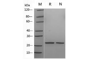 Image no. 1 for Sonic Hedgehog (SHH) (AA 25-198), (Cys25IleIle-Mutant) (Active) protein (ABIN2018373)