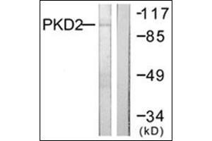 Image no. 4 for anti-Protein Kinase D2 (PKD2) (C-Term) antibody (ABIN784198)