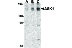 Image no. 1 for anti-Mitogen-Activated Protein Kinase Kinase Kinase 5 (MAP3K5) (C-Term) antibody (ABIN6655832)