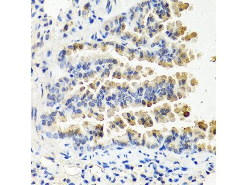 Immunohistochemistry (IHC) image for anti-Neurotrophin 3 (NTF3) antibody (ABIN1873967)