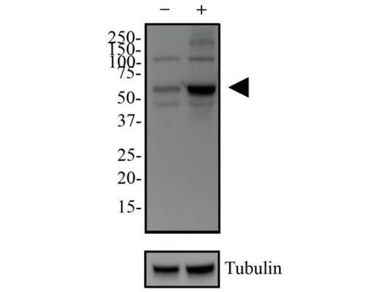 Western Blotting (WB) image for anti-SQSTM1 antibody (Sequestosome 1) (AA 300-440) (ABIN4343147)