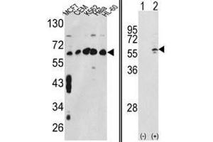 image for anti-Chaperonin Containing TCP1, Subunit 3 (Gamma) (CCT3) (Middle Region) antibody (ABIN452829)