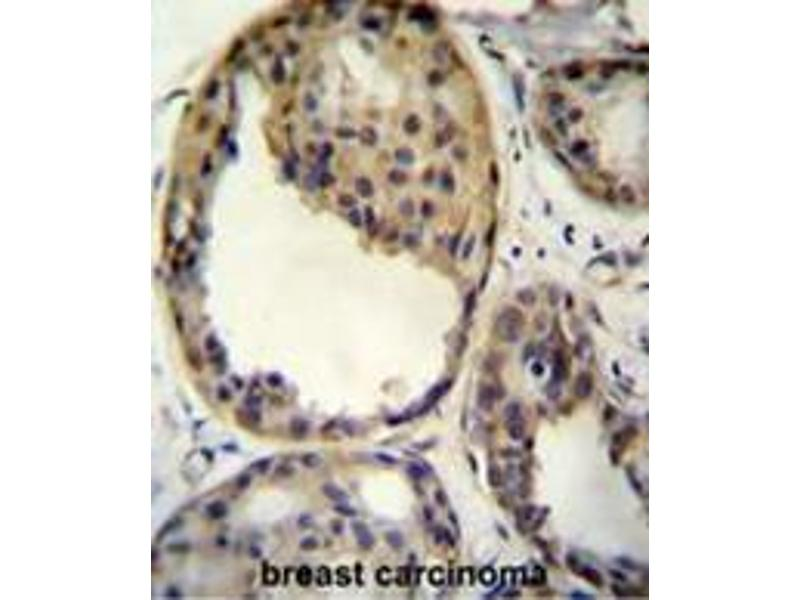 Immunohistochemistry (Paraffin-embedded Sections) (IHC (p)) image for anti-AKT antibody (V-Akt Murine Thymoma Viral Oncogene Homolog 1) (AA 289-318) (ABIN950327)