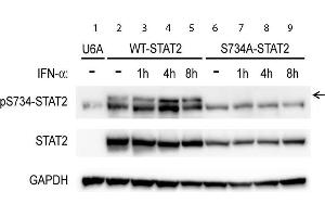 Western Blotting (WB) image for anti-Signal Transducer and Activator of Transcription 2, 113kDa (STAT2) (C-Term), (pSer734) antibody (ABIN5596752)
