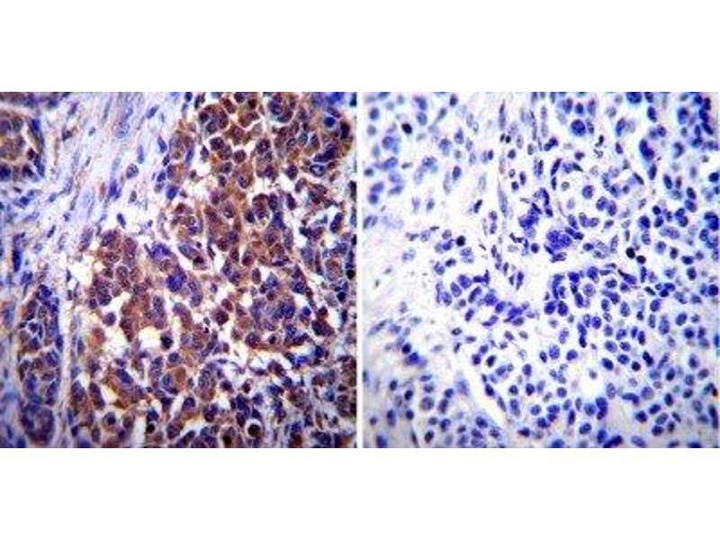 Immunohistochemistry (Paraffin-embedded Sections) (IHC (p)) image for anti-Vimentin antibody (VIM) (ABIN261651)