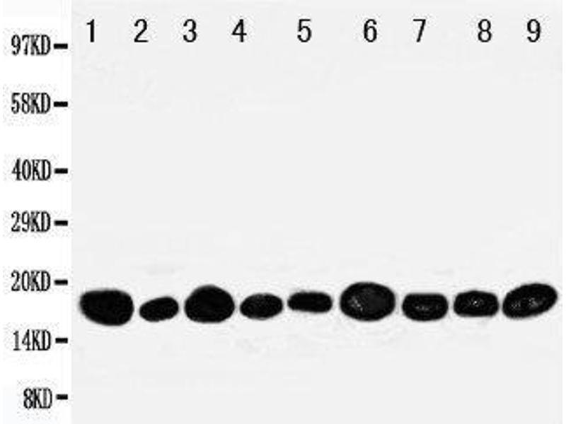 Western Blotting (WB) image for anti-P18 (AA 137-152), (C-Term) antibody (ABIN3044198)