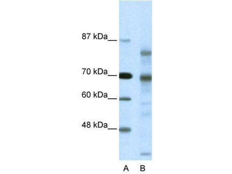 Western Blotting (WB) image for anti-Nuclear Receptor Co-Repressor 2 (NCOR2) (N-Term) antibody (ABIN2779658)