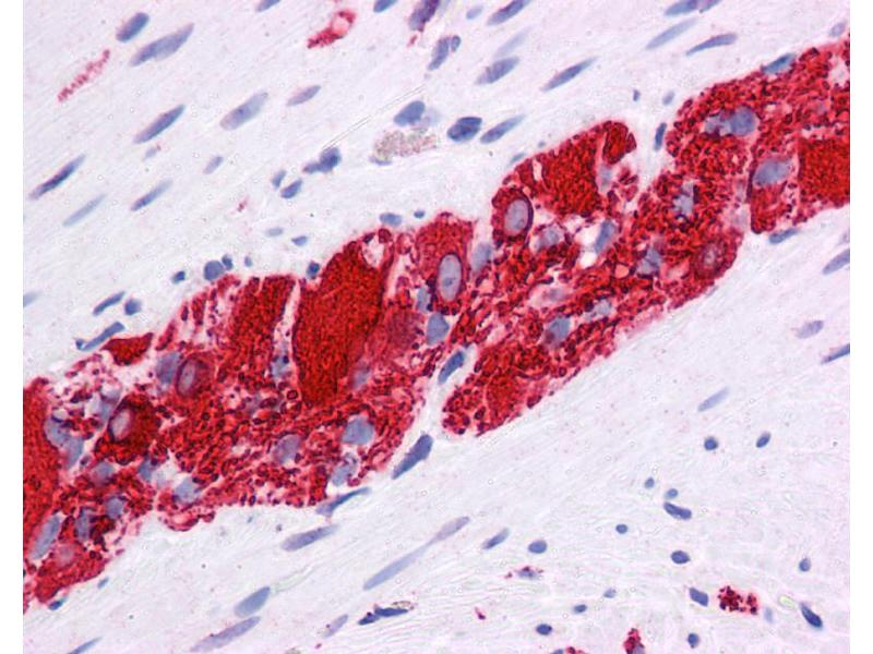 Immunohistochemistry (IHC) image for anti-Nuclear Receptor Subfamily 2, Group E, Member 1 (NR2E1) (N-Term) antibody (ABIN2779454)