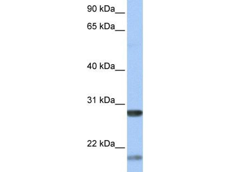 Western Blotting (WB) image for anti-BDNF antibody (Brain-Derived Neurotrophic Factor) (Middle Region) (ABIN2777093)