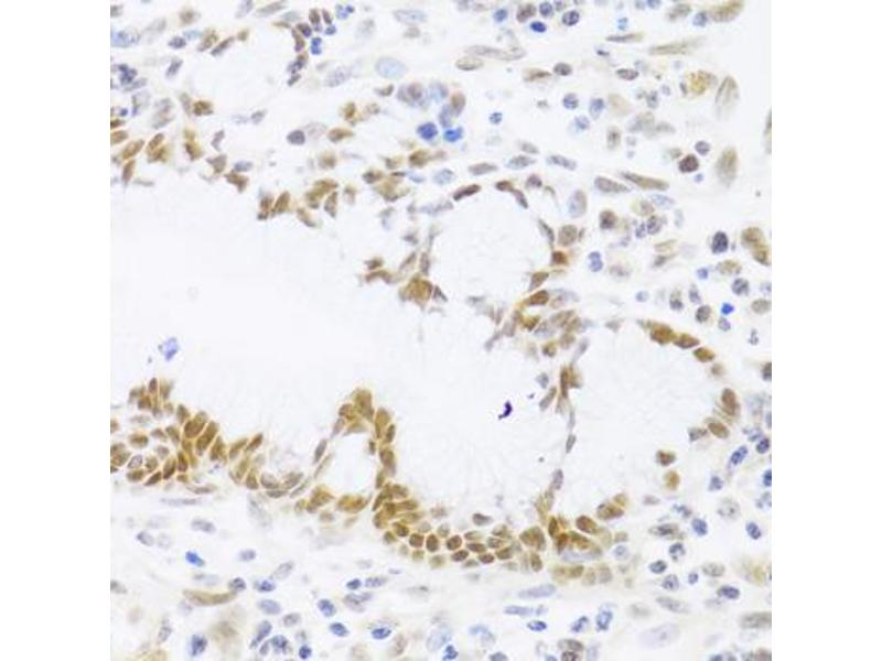 Immunohistochemistry (Paraffin-embedded Sections) (IHC (p)) image for anti-Tumor Protein P53 (TP53) antibody (ABIN2974740)