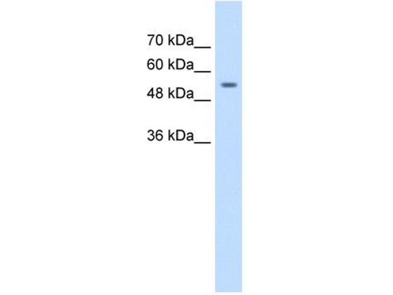 Western Blotting (WB) image for anti-Zinc Finger Protein 498 (ZNF498) (Middle Region) antibody (ABIN309738)