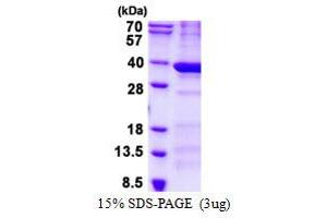Image no. 1 for BCDIN3 Domain Containing (BCDIN3D) protein (His tag) (ABIN1098438)