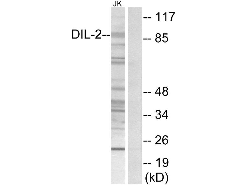Image no. 2 for anti-TPX2, Microtubule-Associated, Homolog (Xenopus Laevis) (TPX2) antibody (ABIN1576075)