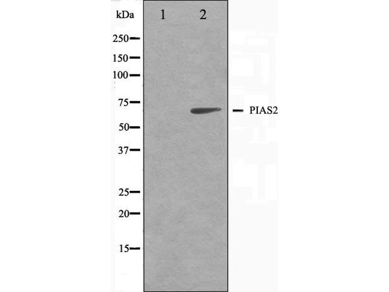 Western Blotting (WB) image for anti-Protein Inhibitor of Activated STAT, 2 (PIAS2) antibody (ABIN6264196)