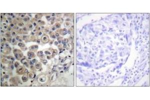 Immunohistochemistry (IHC) image for anti-phospholipase C, beta 3 (Phosphatidylinositol-Specific) (PLCB3) (AA 503-552) antibody (ABIN1532482)