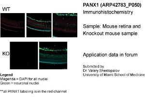 Image no. 3 for anti-Pannexin 1 (PANX1) (Middle Region) antibody (ABIN2775573)