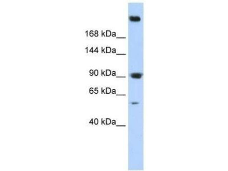 Western Blotting (WB) image for anti-Spectrin alpha Chain, Brain (SPTAN1) (N-Term) antibody (ABIN4890135)