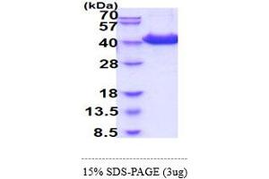 Image no. 1 for CD81 (CD81) (AA 113-201) protein (hIgG-His-tag) (ABIN5854988)