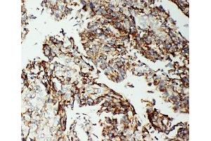 Image no. 1 for anti-Apoptosis-Inducing Factor, Mitochondrion-Associated, 1 (AIFM1) (C-Term) antibody (ABIN3029686)