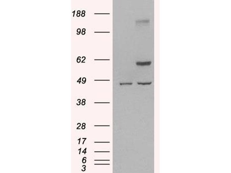 Western Blotting (WB) image for anti-TRAF2 antibody (TNF Receptor-Associated Factor 2) (ABIN2497526)