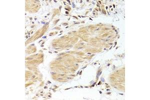Image no. 2 for anti-Caspase 2, Apoptosis-Related Cysteine Peptidase (CASP2) antibody (ABIN6137960)